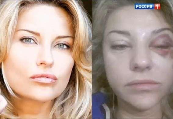 Марат Башаров избил новую жену, сломав ей нос