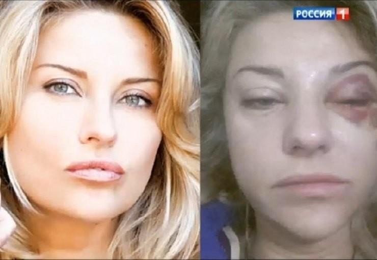 Марат Башаров сломал Елизавете нос: избил жену, пьёт или нет, причины конфликта
