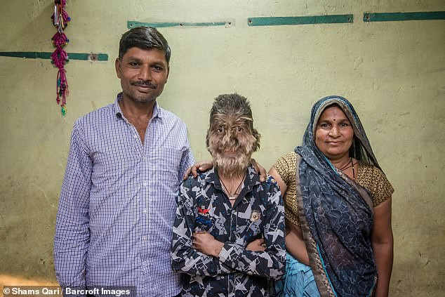 13-летнего индийского мальчика называют настоящим оборотнем