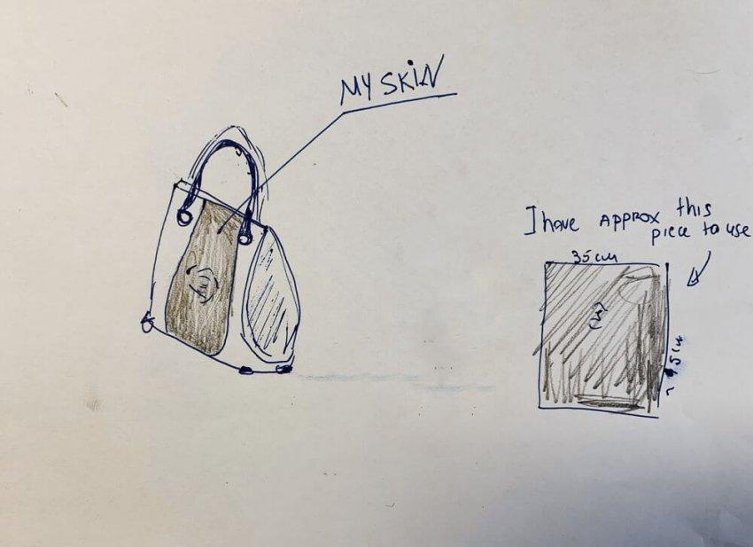 Женщина хочет сшить сумку из кожи своей ампутированной ноги
