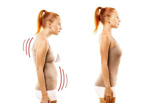 Советы физиотерапевта Дж. Кавальера: 4 упражнения, чтобы исправить осанку навсегда
