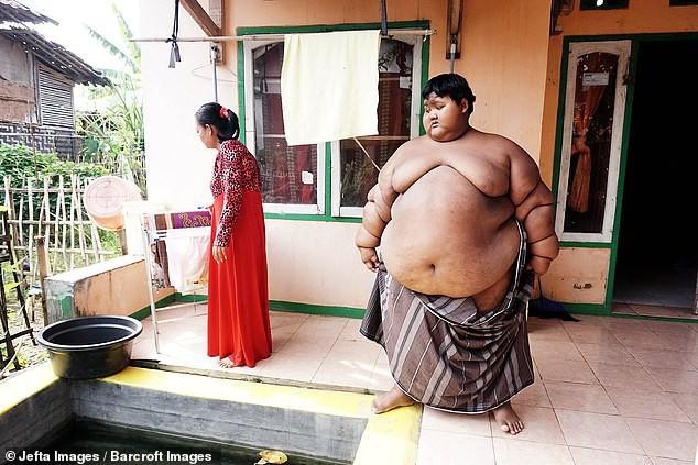 Самый толстый ребенок в мире потерял половину своего веса