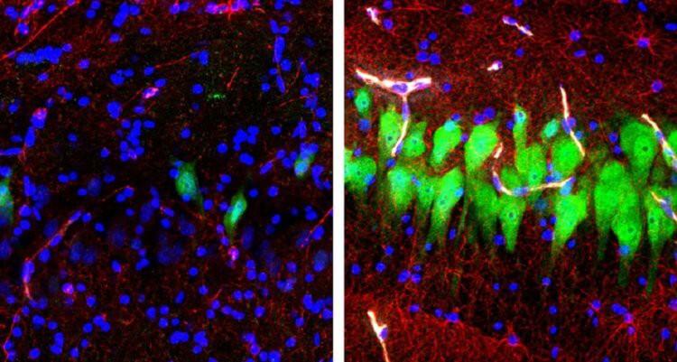 Ученые «оживили» мозги свиней, умерших за несколько часов до этого