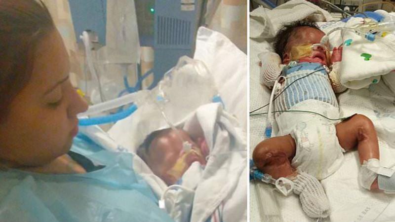 В США родился ребенок без кожи