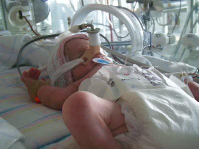 В Великобритании врачи могли выходить новорожденную девочку весом 346 грамм