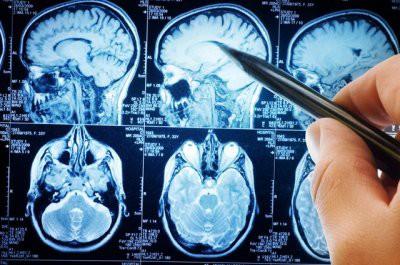 Ученые: зараженное мясо может спровоцировать неизлечимую болезнь
