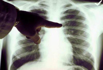 Английские медики обнаружили новые причины рака легких