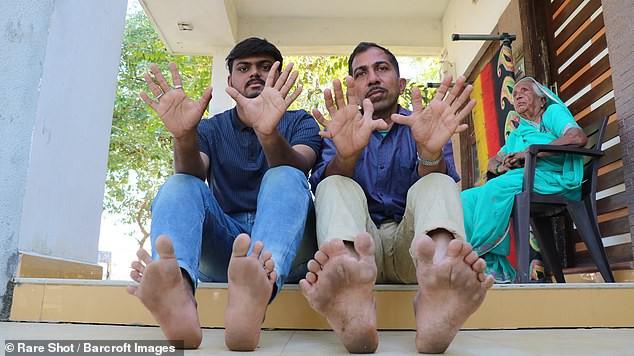 У индийца рекордные 28 пальцев на руках и ногах