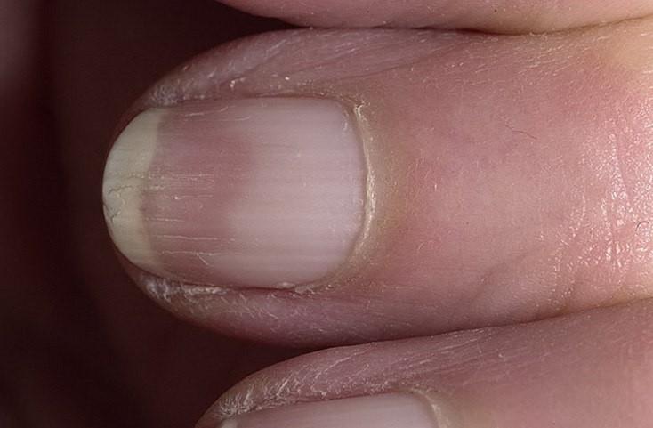 Ногти помогут узнать о состоянии здоровья