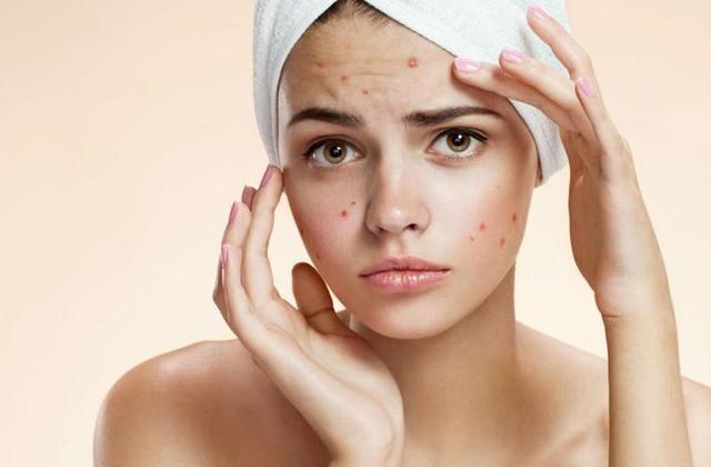 Бьюти-советы, которые навредят вашей коже