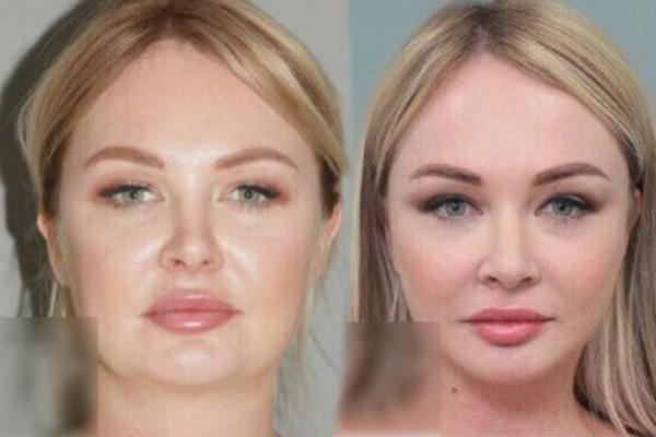 Пластический хирург Дарьи Пынзарь обнародовала её фото до и после операции