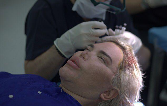 Любитель перекраивать внешность «Живой Кен» Родриго Алвес лысеет