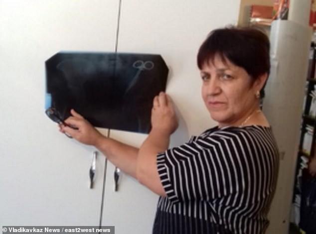 Жительница Северной Осетии 23 года жила с забытым хирургическим зажимом в животе