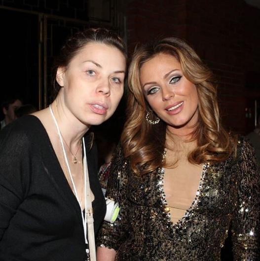 Анна Исаева впервые прокомментировала слухи о раке у Юлии Началовой