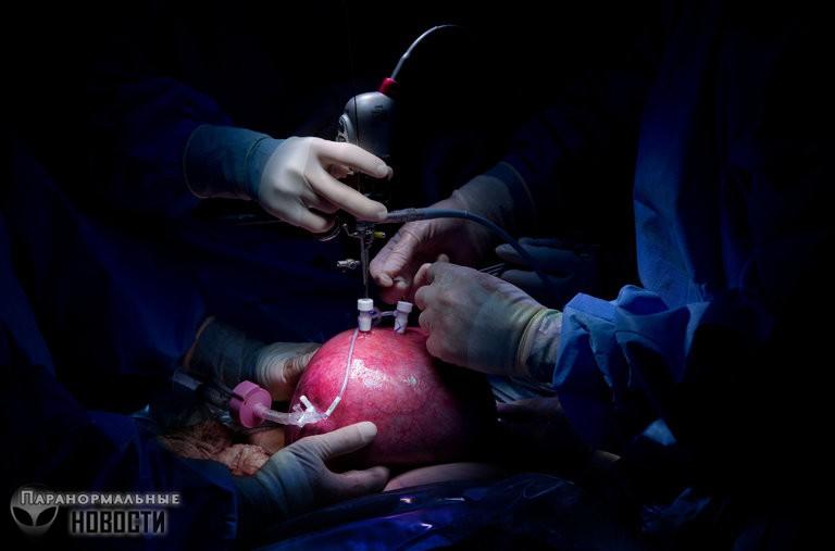 Как живет мальчик, которому еще в утробе сделали рискованную операцию на позвоночнике - Паранормальные новости