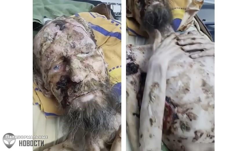 Живой труп: Мужчина со сломанной спиной месяц пролежал в медвежьей берлоге и выжил (Осторожно! Шокирующий контент! 18+) - Паранормальные новости