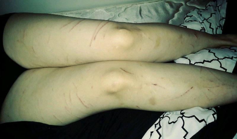 В Техасе на женщину напало странное волосатое существо и сильно расцарапало - Paranormal-news.ru