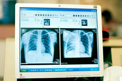 Российский онколог подтвердил пять самых распространенных мифов о раке