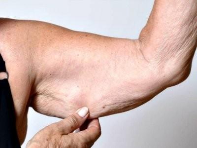 Врач назвал признаки, которые указывают на дефицит тестостерона у женщин