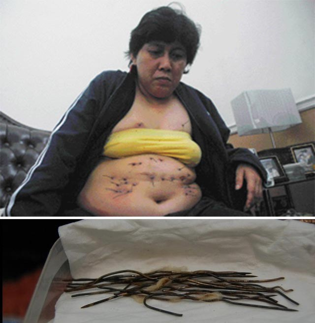 У жительницы Индонезии из тела растет металлическая проволока