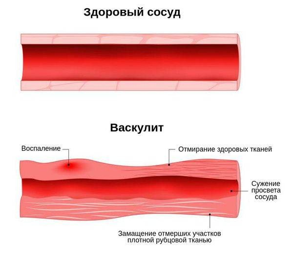 Почему лицо экс-супруги футболиста Андрея Аршавина Алисы Казьминой так изменилось