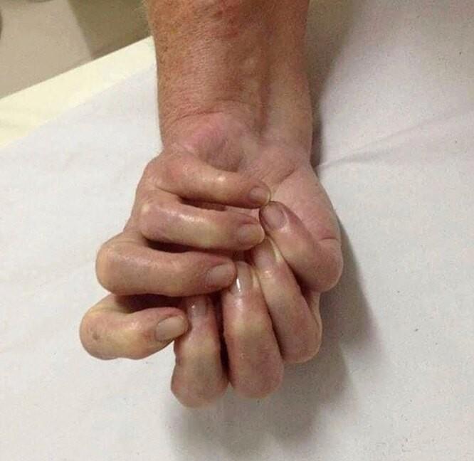 10 необычных аномалий тела человека